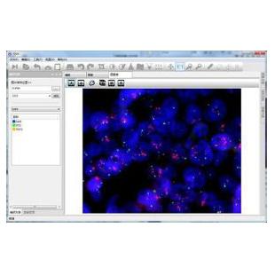 MFISH熒光原位雜交分析系統
