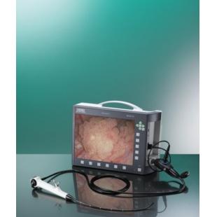 全新原装进口史托斯电子膀胱尿道镜