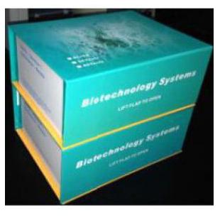 血管内皮抑素(Endostatin)试剂盒48T
