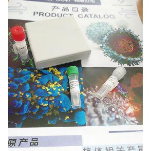 Recombinant Human anti-COVID-19/SARS-CoV-2 Nucleo