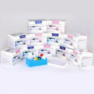 弓形虫IgM抗体检测试剂盒(酶联免疫法)