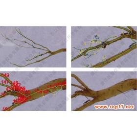 根系分析系统