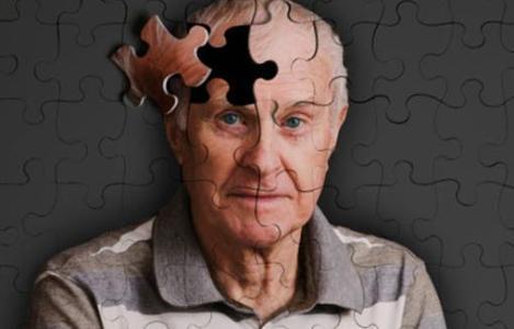 新发现三种基因与阿尔茨海默病有关