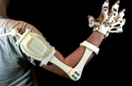 3D打印技术首次用于治疗股骨头坏死