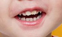【第237期】洗牙真的��害牙�X��?