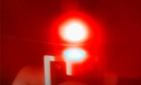深圳先进院采用多帧重构算法实现双光子显微成像技术质量提高