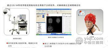 癫痫手术定位系统